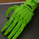 Talladega City Schools students in the Precision Machine/Industrial Maintenance/Robotics Program created a prosthetic hand for a patient in Nepal